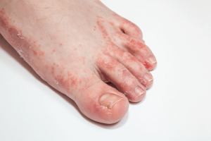 Feet fungal infection